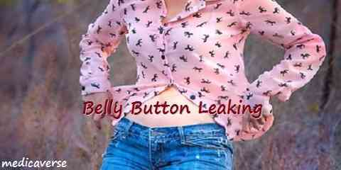 belly button leaking
